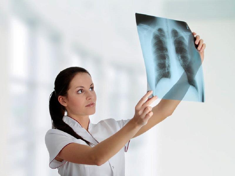 Нужно ли проходить беременным флюорографию 49