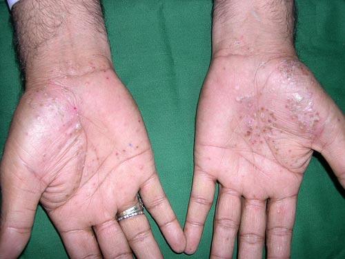 simptom-grigoreva-pri-psoriaze